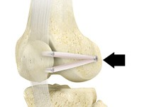 Medial Patellofemoral Ligament Reconstruction
